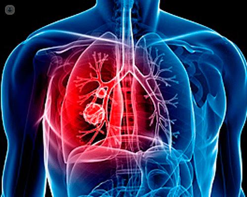 Comunicazione Ema su Xeljanz:  rischio di embolia polmonare in pazienti affetti da artrite reumatoide