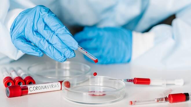Prima lista di laboratori e strutture autorizzate a effettuare TEST SIEROLOGICI in Regione e in provincia di Parma